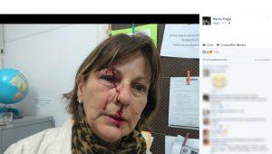 Professora de SC denuncia agressão física por aluno de 15 anos