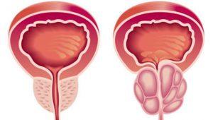 Sintomas de prostatismo   Dr. Salim